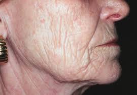 wrinkles on face