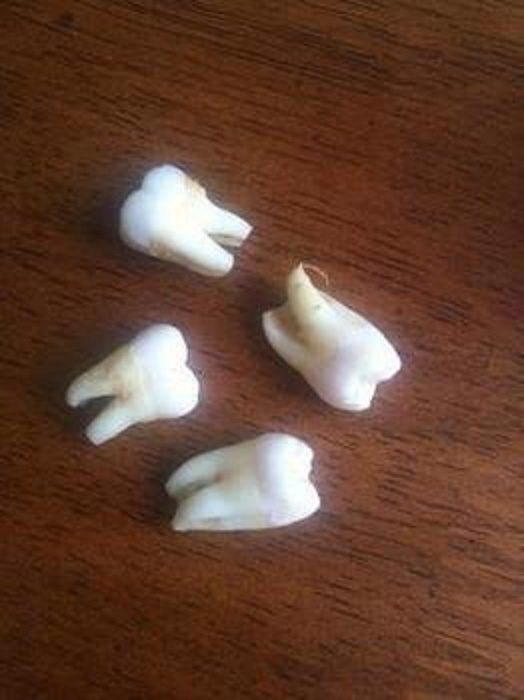 teeth pulled
